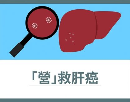 「營」救肝癌